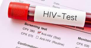 SIDA VIH