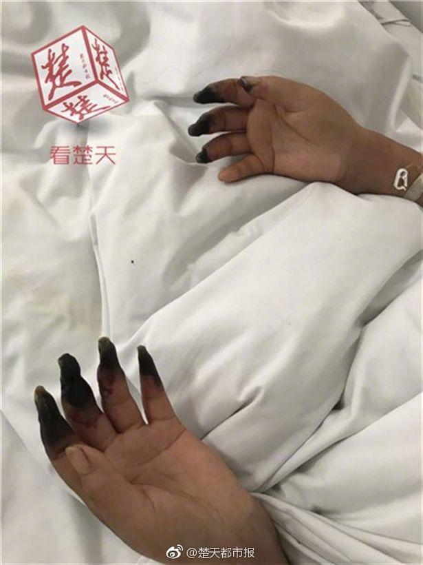 Mano negra