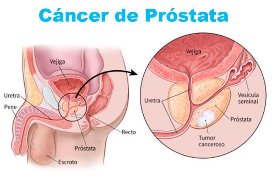 cancer de prostata y tiroides