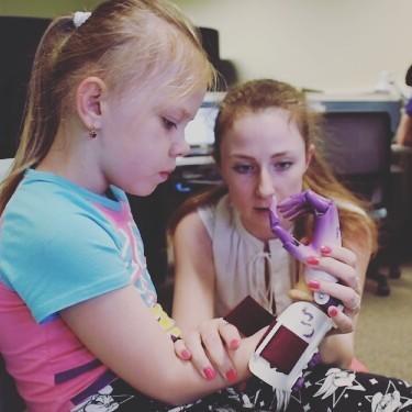 Protesis bionicas para personas con discapacidad